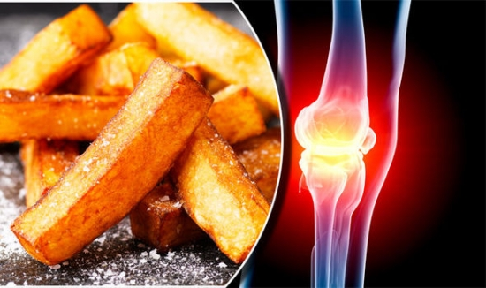 Arthritis symptoms: Should you stop eating potatoes?