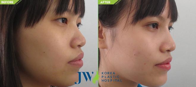 Chiếc mũi cao, đầu mũi dài giúp gương mặt thanh tú hơn.